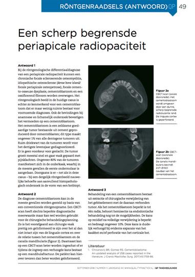 Periapicale radiopaciteit