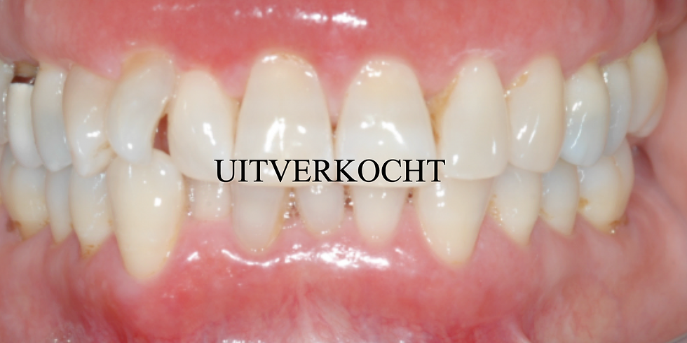 Geannuleerd ivm COVID-19 - Mondhygiënisten: Mond- en Kaakziekten - Roermond