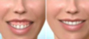 gummy smile_edited.jpg