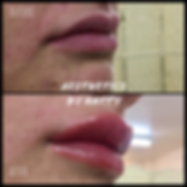 lips new.png