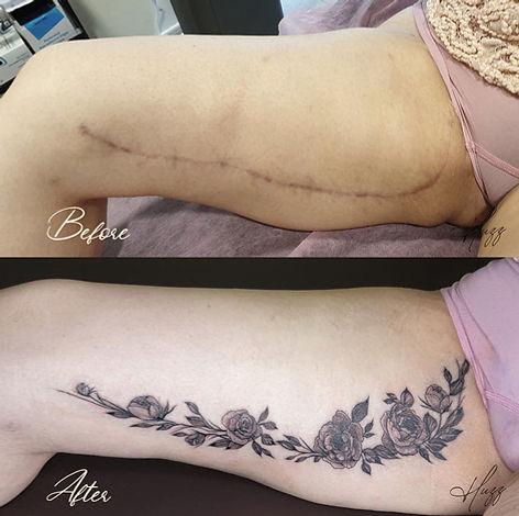 leg scar 5.JPF