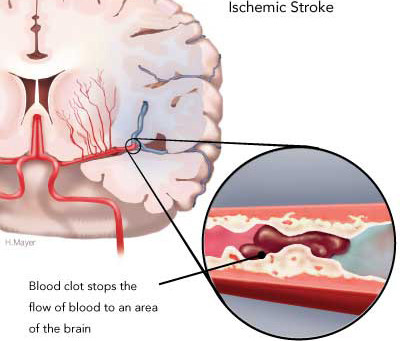 Electromagnetic Radiation & Ischemic Stroke
