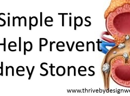 5 Simple Tips To Help Prevent Kidney Stones
