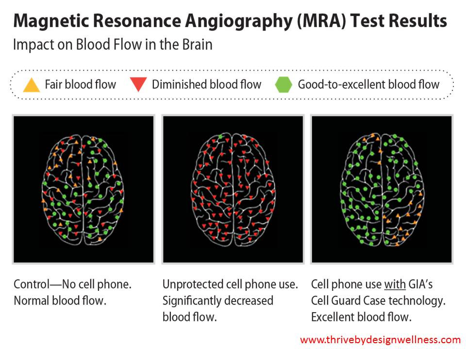 MRA Test Results.  Impact on Blood Flow in the Brain