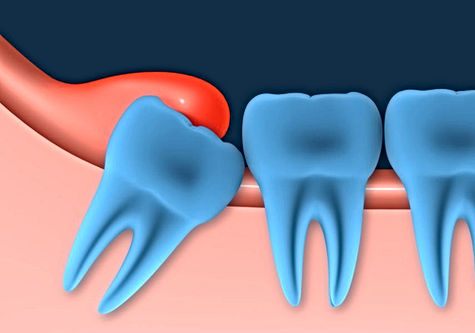 Impacted Wisdom Tooth Surgery