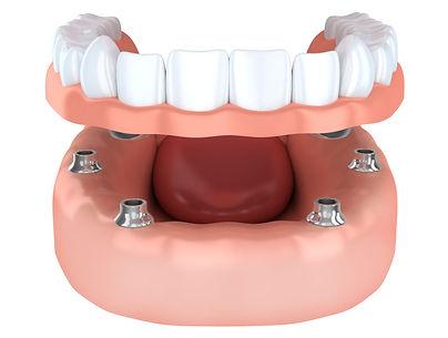 Dental Implants Implants