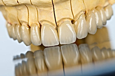 Dental Bridges Bridges