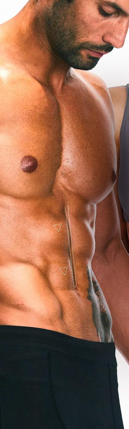 Marcación Abdominal o Lipomarcación