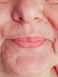 Relleno de Arrugas con Grasa o Lipofilling