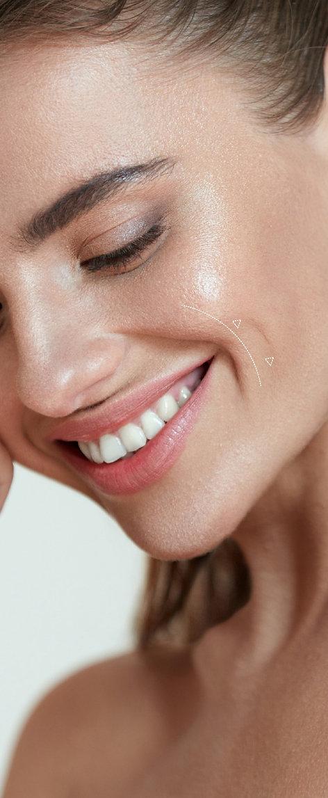 Tensado Facial Sin Cirugía