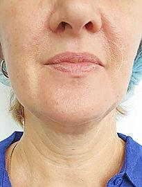 Cirugía de Lifting de Cara y Cuello