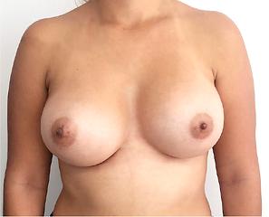 aumento de senos lunes 10 insta-03.png
