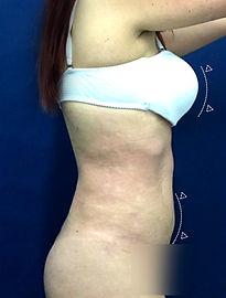 Elevación de Senos + Abdominoplastia