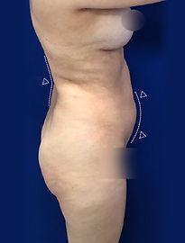 Lipoescultura o Liposucción