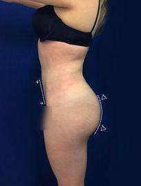 Cirugía de Aumento de Glúteos
