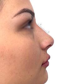 Modelación de Nariz con Ácido Hialurónico