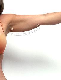 Cirugía de Lifting de Brazos o Muslos