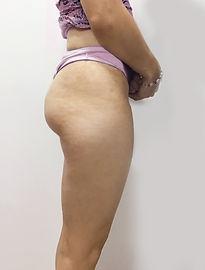 Tratamiento Contra la Celulitis y la Flacidez