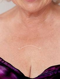 Tratamiento Contra las Arrugas del Escote