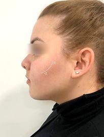 Cirugía de Mejillas o Bichectomia