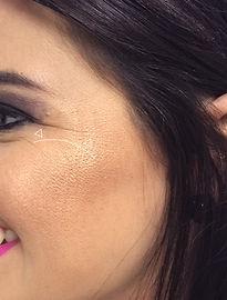Tratamiento Contra las Arrugas con Bótox