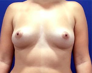aumento de senos lunes 10 insta-02.png