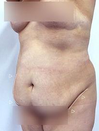 Cirugía de Abdomen o Abdominoplastia