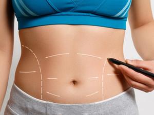 Abdominoplastia, En Qué Consiste Y Para Quién Es Indicada