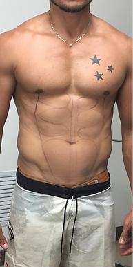 marcacion-abdominal-02.png