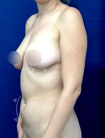 Abdominoplastia + Aumento de Senos