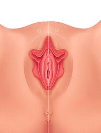 Reducción de Labios Vaginales o Labioplastia