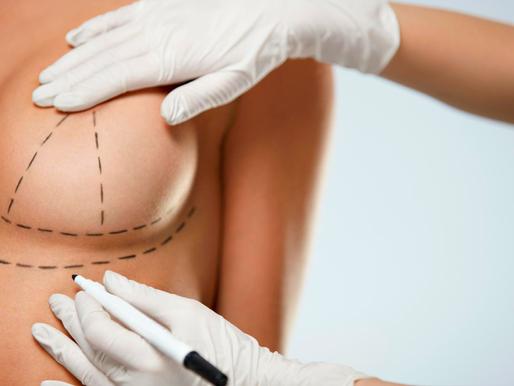 Cirugía de elevación de pecho, todo lo que debes saber