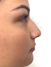 Modelación de Nariz Sin Cirugía