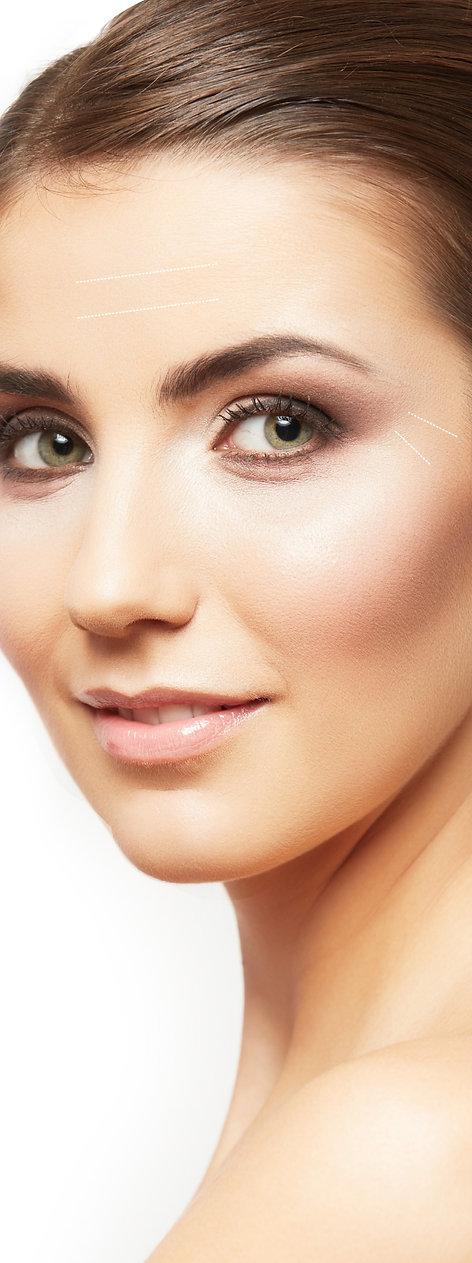 Tratamiento Para las Arrugas con Bótox