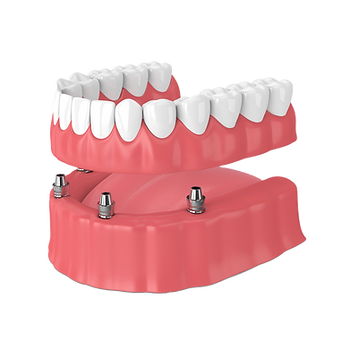 Implant Denture Transparent.png