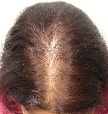 Female pattern baldness.jpg