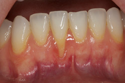 Severe Gingival Recession