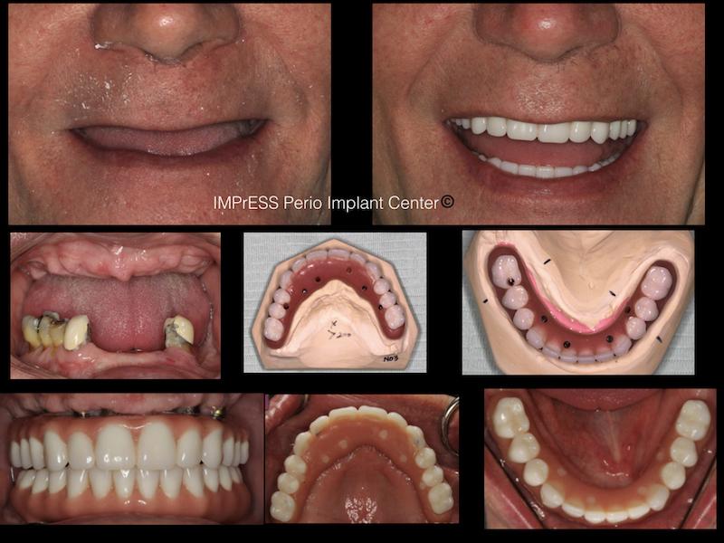 Full Mouth Implant Rehabilitation IMPrESS Perio Implant Center Dr. Noroozi.001
