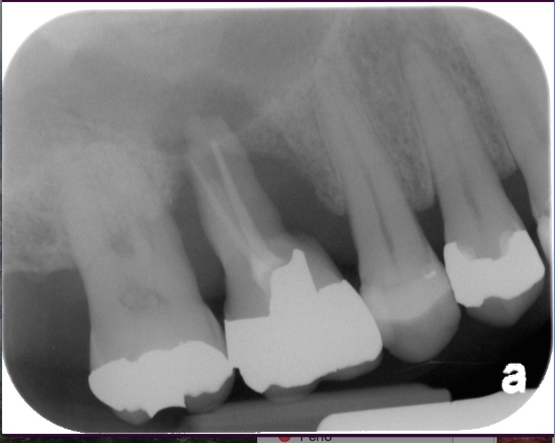 Perio Endo Lesion-Vertical Bone Loss