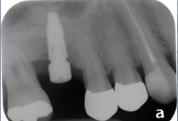 Vertical Ridge & Sinus Augmentation