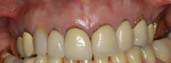 Significant Gingival Recession