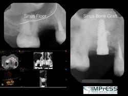 Sinus Lift Surgery Vancouver IMPrESS Perio Implant Center