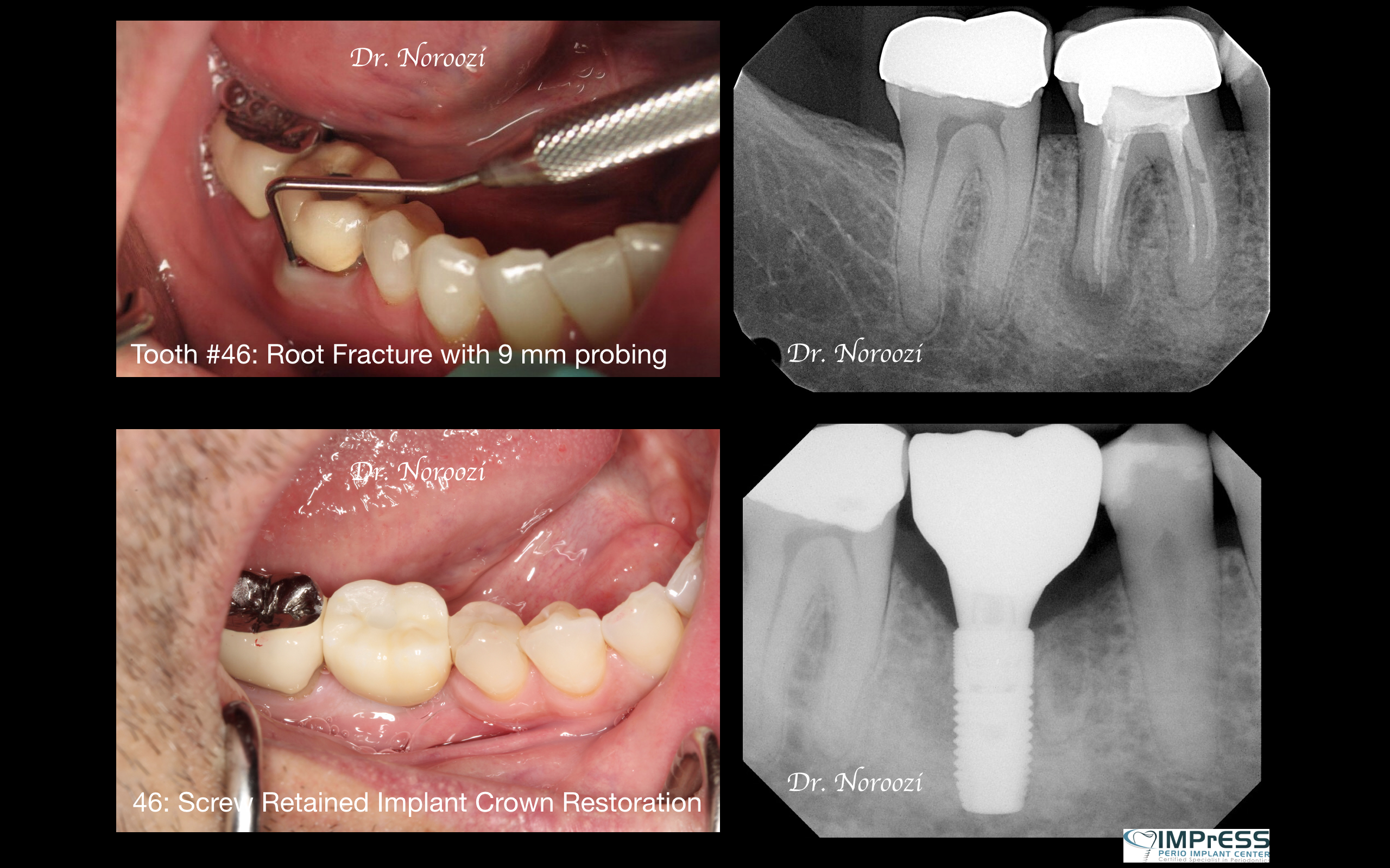 Dental Implant Centre Vancouver Periodontist Dr. Noroozi IMPrESS Perio Implant Centre