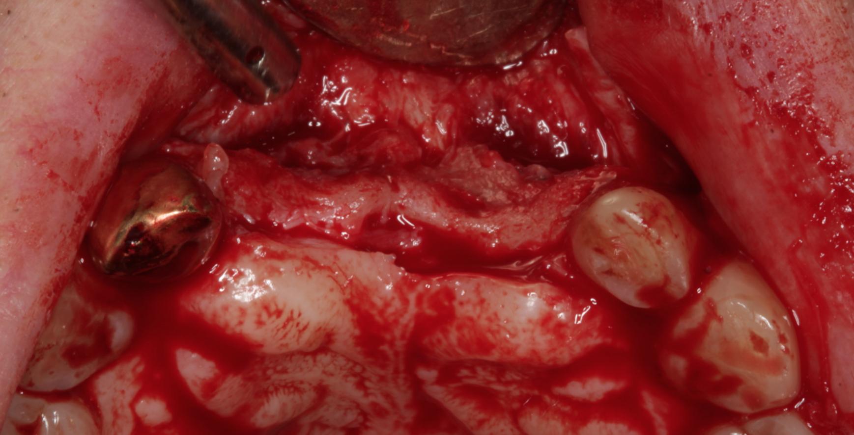 Severe Bone Deficiency