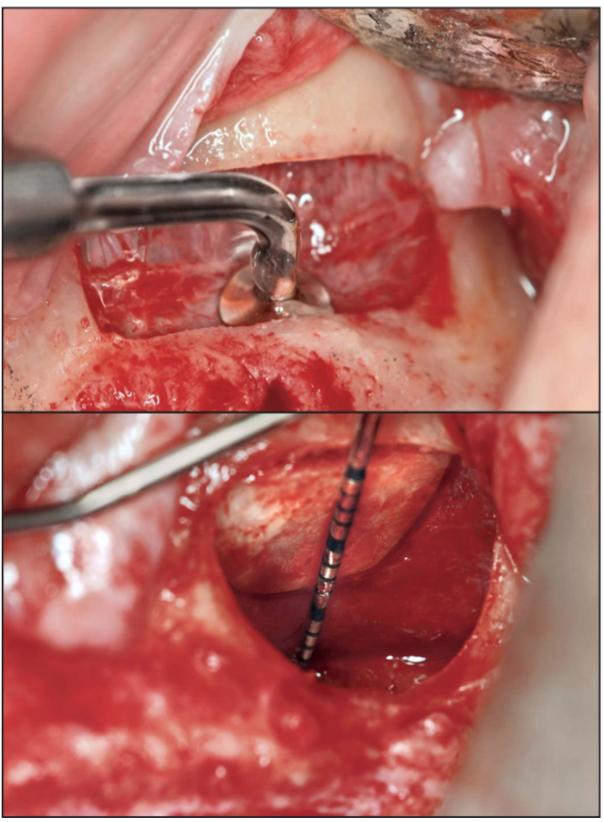 IMPrESS Perio Implant Center Sinus Lift Surgery