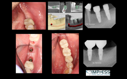 Computer Guided Implant Surgery