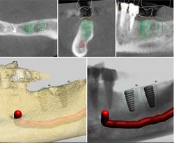 Vancouver Dental Implants IMPrESS Perio Implant Center Vancouver BC