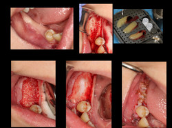 Bone Grafting for Implant Dr. Noroozi.001