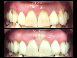 Gum Grafting for Gum Recession Dr. Noroozi I.001