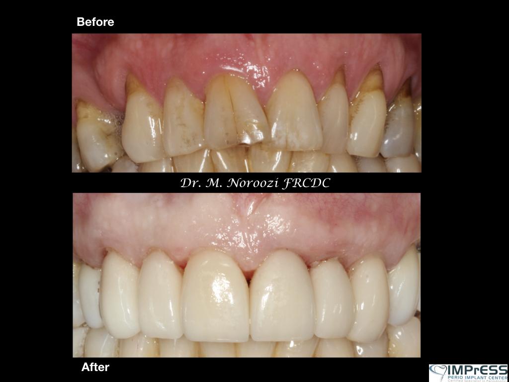 Gum Graft Altenative Cosmetic Dentistry